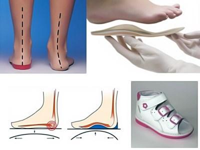 Как подобрать ортопедические стельки при плоскостопии в Харькове
