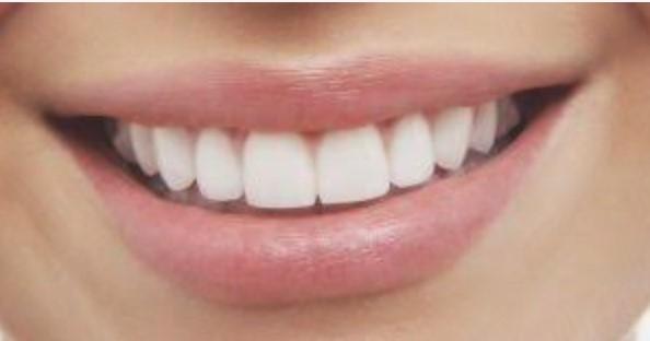 Стоматологія та вініри: шукаємо кращих фахівців