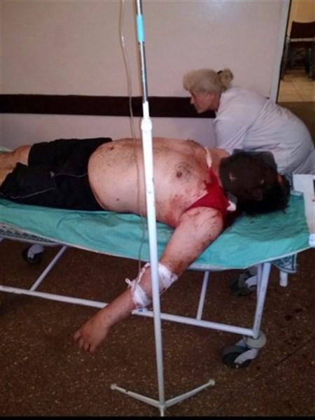 В Горловке во время обстрела тяжелое ранение получил мирный житель. Опубликовано фото
