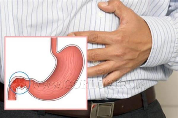 Язва двенадцатиперстной кишки: причины и симптомы