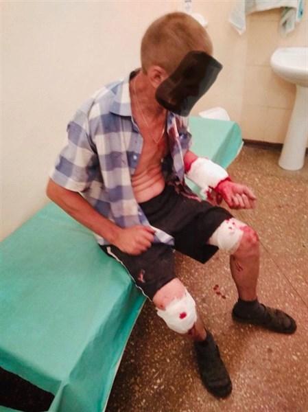 Вчера в Горловке ранен житель, копавший на огороде картошку