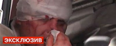 Митингующие зверски избили начальника милиции Андрея Крищенко. Сейчас он в больнице.
