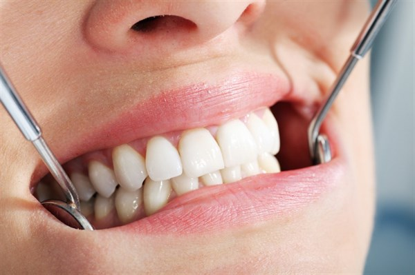 Система имплантов Nobel: достойная альтернатива утраченным зубам