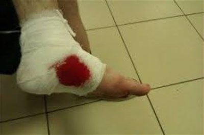 Как получить инвалидность, если было ранение в зоне военных действий на Донбассе