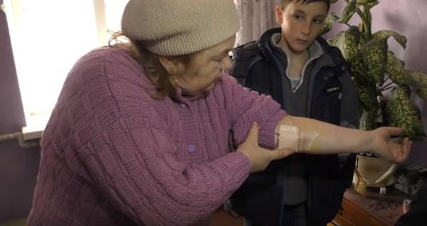 Семья горловчан с шахты 6/7 рассказали, какие ранения получили из-за ночного обстрела поселка