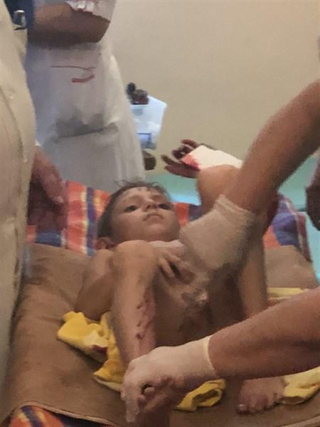 Взрыв гранаты в Горловке: двух детей и пенсионерку с ранениями госпитализировали в больницу (ВИДЕО)
