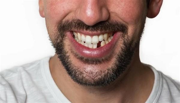 Пять причин, по которым мы теряем зубы