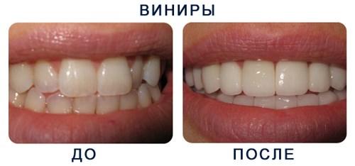 Виниры на зубы: как сделать красивую улыбку